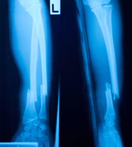 From Broken Bones to Patient Codes: The Life of a Radiology